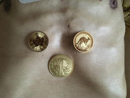 金貨.jpg